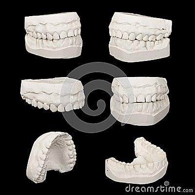 套牙齿铸件石膏模型