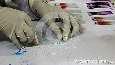 Ένα φορημένο γάντια παθολόγος χέρι επισύρει την προσοχή μια κηλίδα αίματος σε μια φωτογραφική διαφάνεια γυαλιού απόθεμα βίντεο