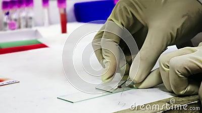 Ένα φορημένο γάντια παθολόγος χέρι παίρνει έτοιμο να επισύρει την προσοχή μια κηλίδα αίματος σε μια φωτογραφική διαφάνεια γυαλιού απόθεμα βίντεο