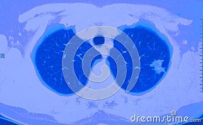 πνεύμονας CT καρκίνου