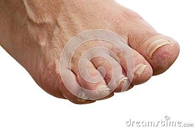το πόδι unhealty