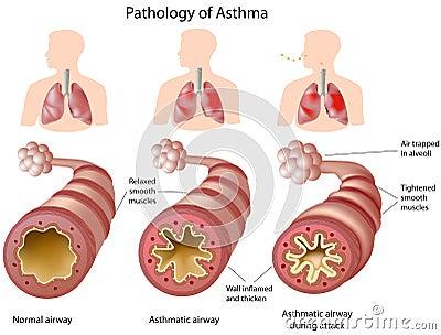 астма анатомирования