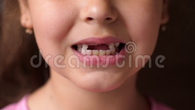 Детские зубы Беззубиная улыбка Вырез корневого зуба Девушка открывает губы и не показывает передних зубов Закрыть сток-видео