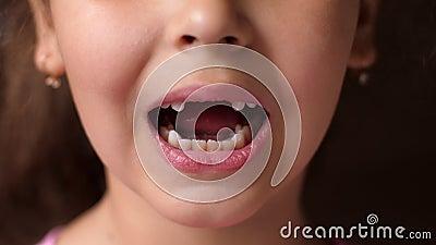 Детские зубы Стучит зубы и закрывает рот Вырез корневого зуба У девушки нет передних зубов Закрыть видеоматериал