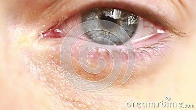 красный глаз с разрывами - конец-вверх сток-видео