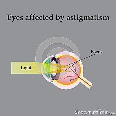 Ночные линзы для восстановления зрения купить в ростове
