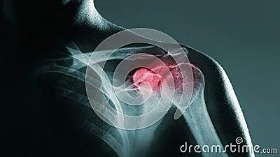 Человеческое соединение плеча в рентгеновском снимке акции видеоматериалы