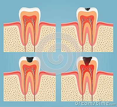 蛀牙 发展阶段.