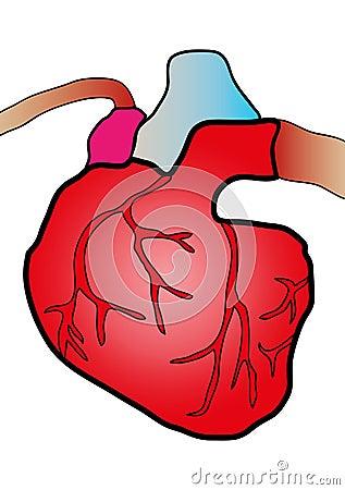 心脏病系统图片