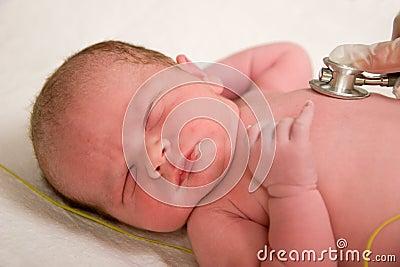 新出生的检查