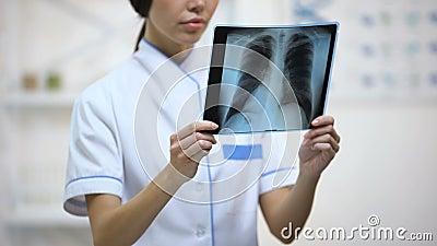 殷勤地看肺X-射线,支气管炎,健康的风险的女性医师 影视素材
