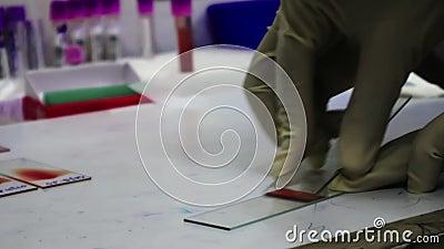 病理学家手套的手画在一个载玻片的血液污迹 股票视频