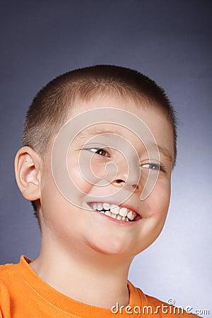 暴牙的微笑