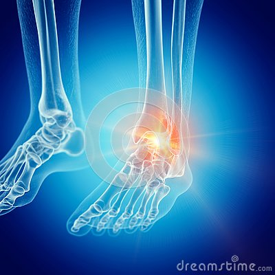 Free A Painful Ankle Stock Photography - 127832142