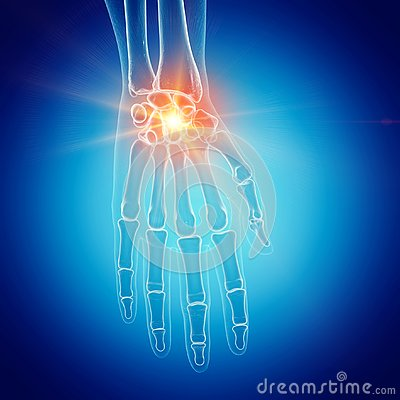Free A Painful Wrist Royalty Free Stock Photography - 127832017