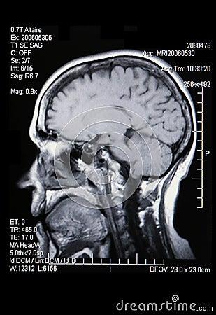 Free A Real MRI/ MRA Stock Photo - 2167670