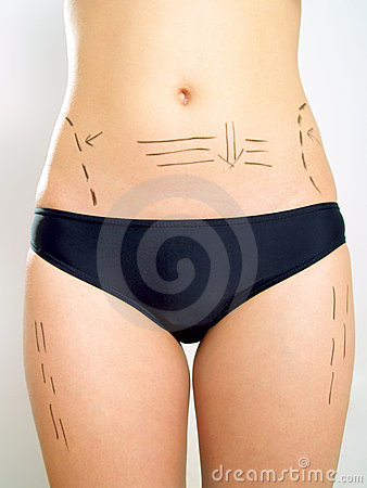 Abdomen, waist, thigh marked for plastic surgery