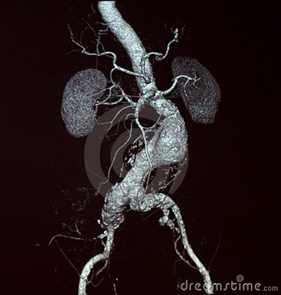 Free Abdominal Aortic Aneurysm, CT Royalty Free Stock Photos - 8979778