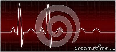 Abnormal EKG