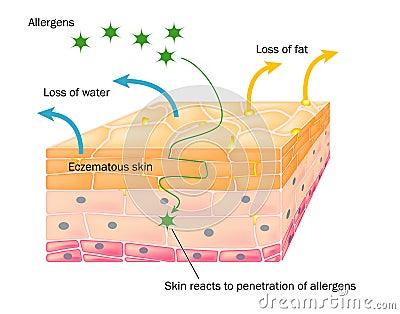 Acción del eczema en piel