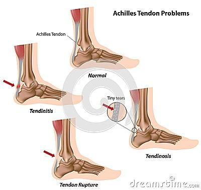 Achilles tendon problems