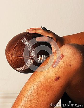 ACL Football injury.