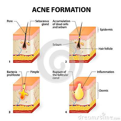 Free Acne Formation Stock Image - 53233341