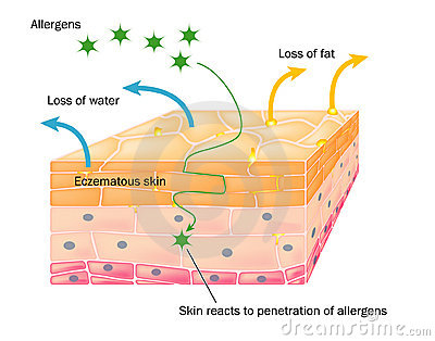 Action of eczema on skin