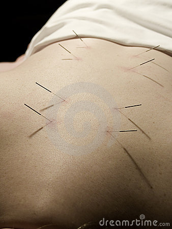 Free Acupuncture Concept Stock Photography - 2282562