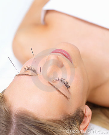 Acupuncture healing beautiful woman