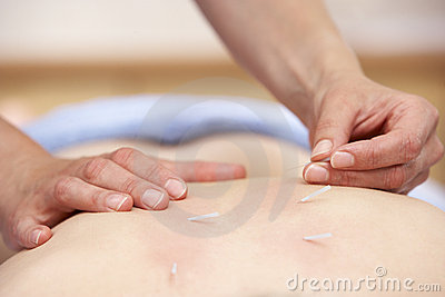Acupuncturist treating female client