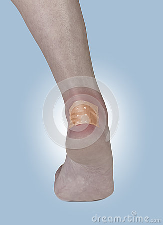 Adhesive Healing plaster on the heel.