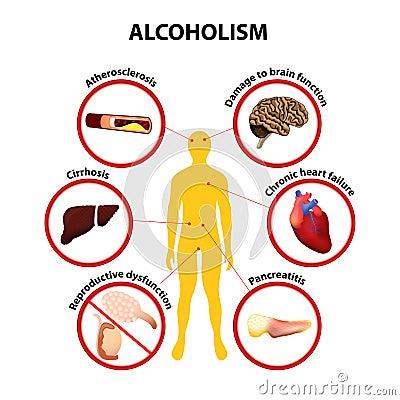 Trattamento di dipendenza alcolica in SPb