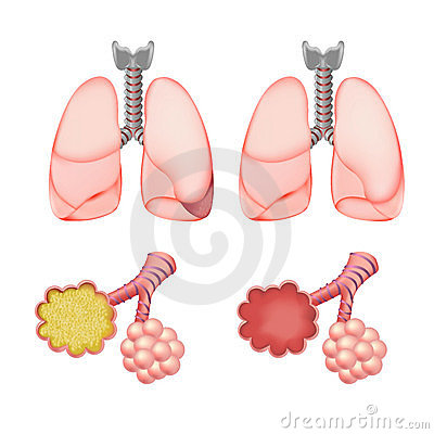Alveoli In Lungs Set