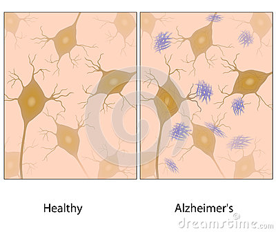 Alzheimer disease brain tissue