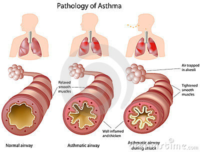Anatomie d asthme