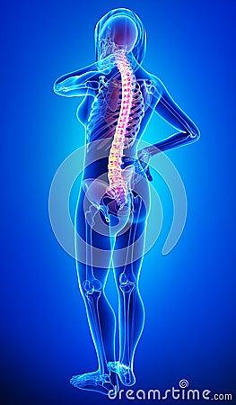 Anatomy of female back pain