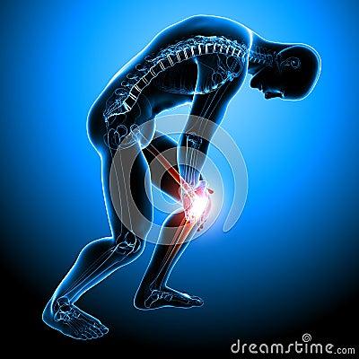Anatomy of male knee pain