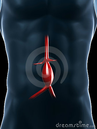 Aneurysm of the aorta