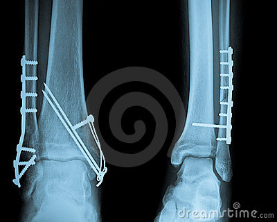 Ankle X ray with Osteosynthesis