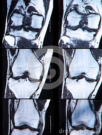 Anterior cruciate ligament tear seen on knee MRI.