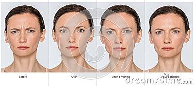 Plastic surgery long term effects