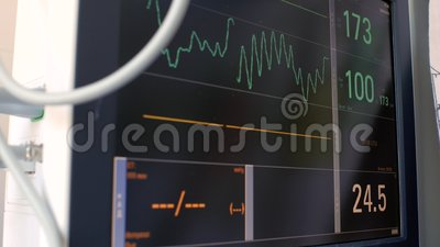 Anzeige des Elektrokardiographen, Diagramme der elektrischen Aktivität des Herzschlags des Patienten und Blutdruck, Diagramme auf stock video