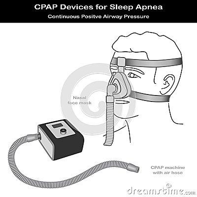 Apnea de sueño, CPAP, máscara de la nariz
