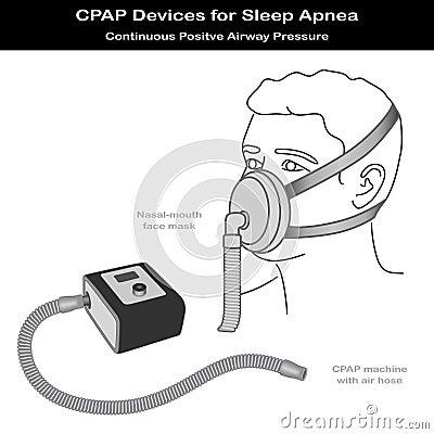Apnea di sonno, CPAP, radiatore anteriore - mouth la mascherina
