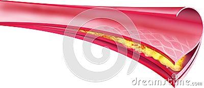Arteria con colesterol