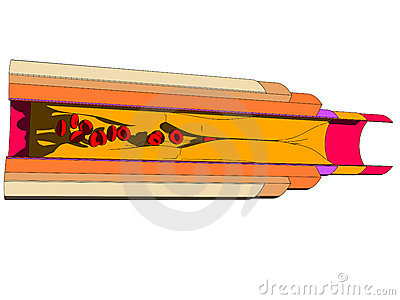 Artery cut
