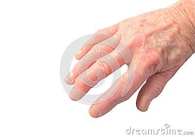 Arthritis in hand