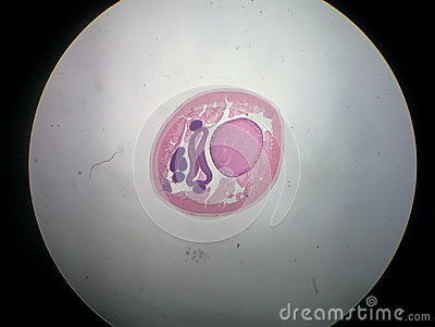 ASCARIS male ,roundworm