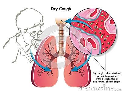 Asciughi la tosse